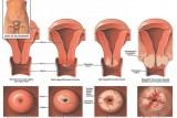 rahim-agzi-kanseri-risk